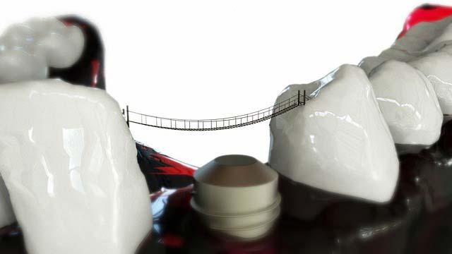 Czy warto wstawiać implanty zębów?