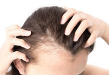tabletki na porost włosów wybrać